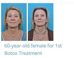 Botox before and after image from Dr. Piazza, Austin Plastic Surgeon